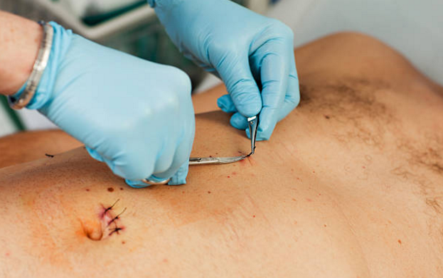 pain from scar tissue Archives - Gallbladder Attack